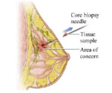 Core needle biopsy.