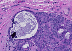 Anorther example of microcalcification.